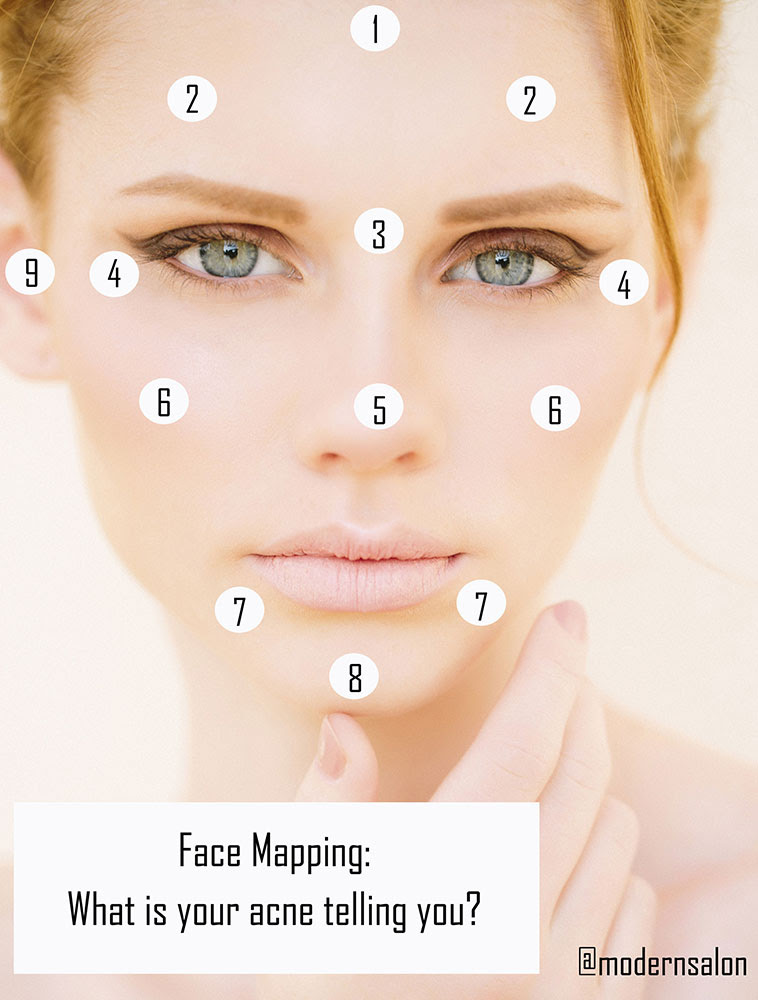 What Acne Spots To Your Face Suggest In Keeping With Technology