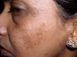 Melasma Treatment with Using Chemical Peeling