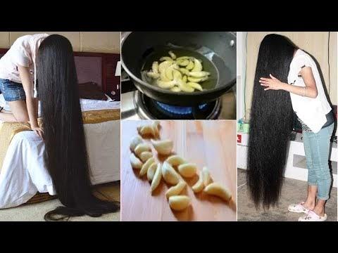 15 दिन : टूटते- झड़ते बाल(Hair) बचाये । बालो को लम्बा- घना और मजबूत बाले