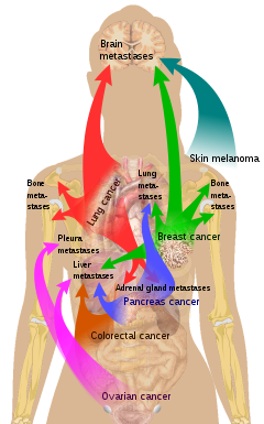 Metastatic Cancer Meaning In Tamil Metastatic Cancer Hindi Meaning