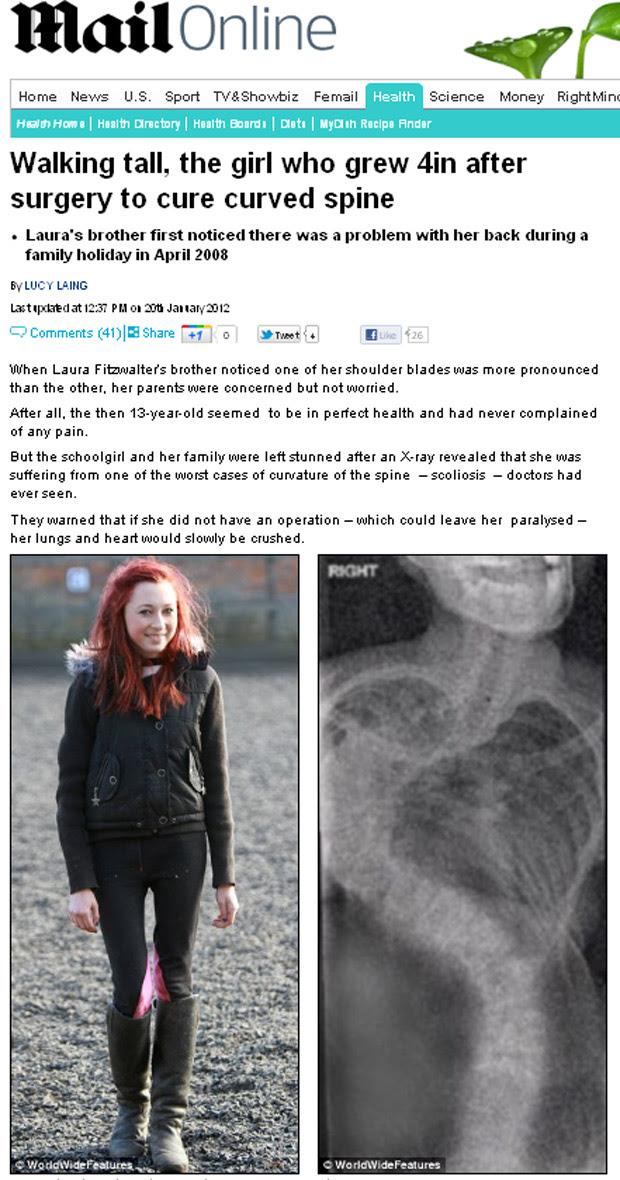 A britânica Laura Fitzwalter (à esquerda) e o raio-x que detectou a escoliose. (Foto: Daily Mail / Reprodução)