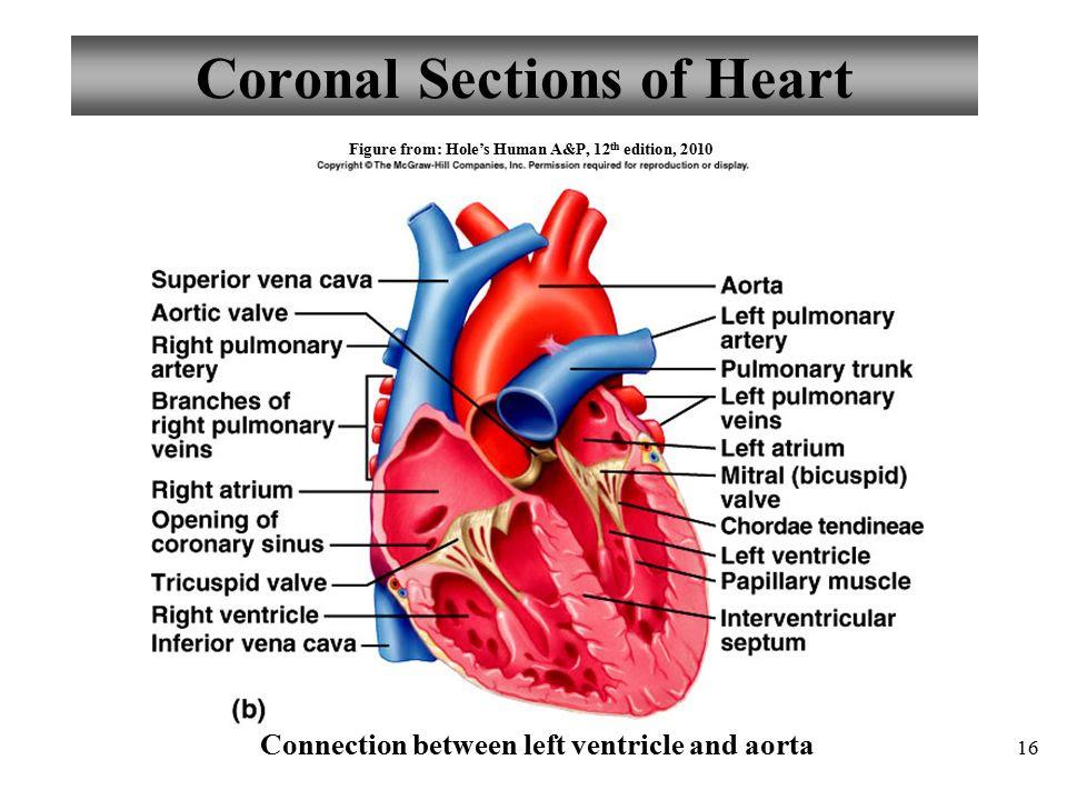 Coronal+Sections+of+Heart