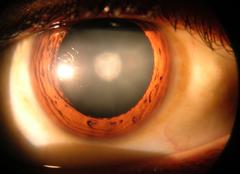 Zaćma oka ludzkiego widziana w lampie szczelinowej