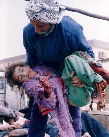 Un-named Child Victim in Fallujah, Iraq
