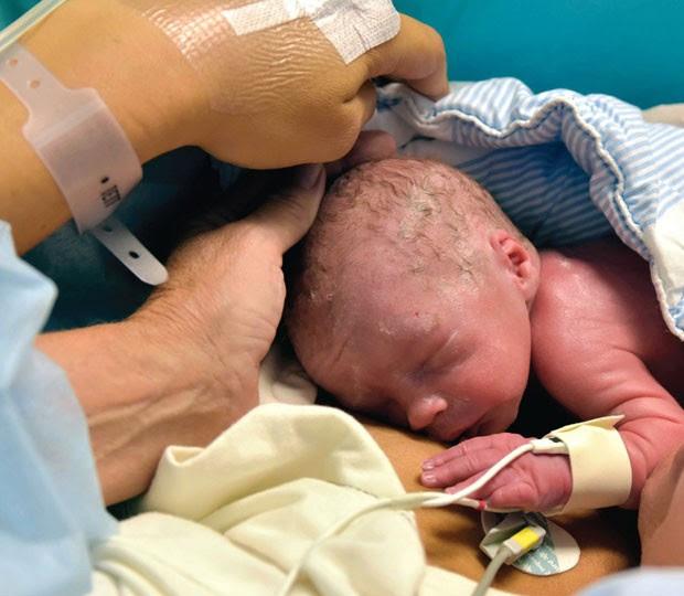 Bebê nasceu em Gotemburgo, na Suécia (Foto: The Lancet/AP)