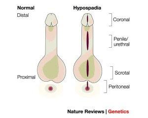 penis de o formă neobișnuită