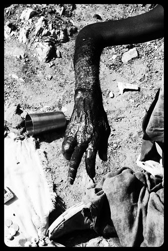 The Beggars Hand .. Taragadh by firoze shakir photographerno1