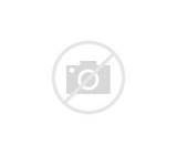 Mechanism Of Acute Pain Pictures