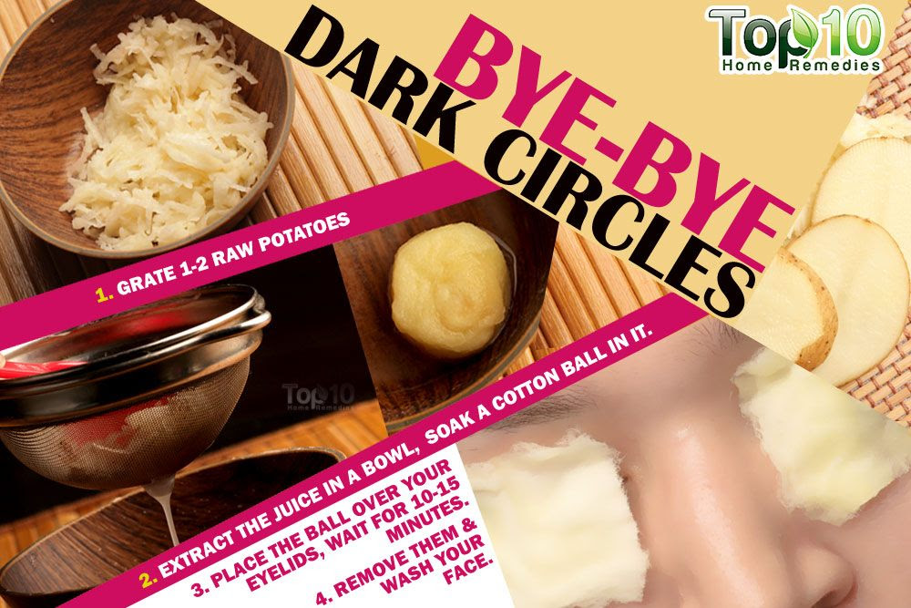 How To Get Rid Of Dark Circles Fast | Top 10 Home Remedies
