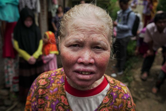 Entar Maiyati says she knows nobody else in her family with the condition.
