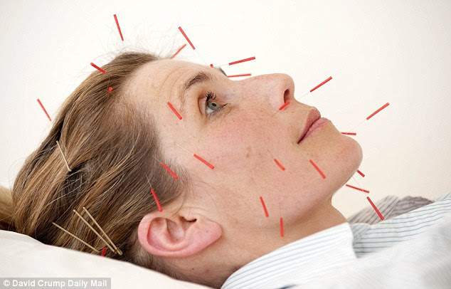 Needle work: Frances underwent facial acupuncture to improve the quality of her skin