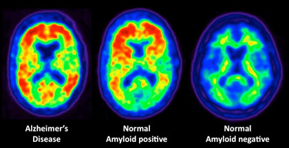 Image result for normal brain and alzheimer's brain amyloid buildup