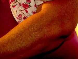 Professora de Pirassununga teve luxação no braço após levar vassourada de aluno (Foto: Wilson Aiello/EPTV)