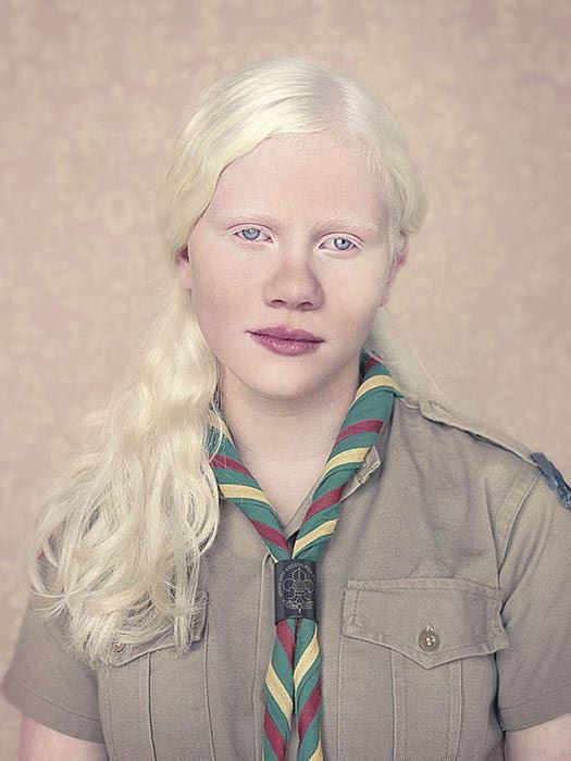 Albino (3)