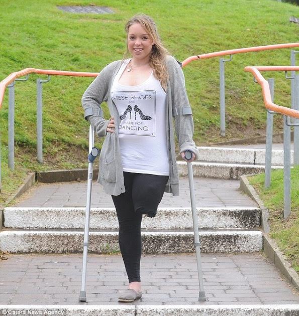 Determinação: Annabelle desafiou todas as probabilidades, após perder a perna e voltou para o time para brilhar ainda mais (Foto/ Reprodução: Daily Mail).