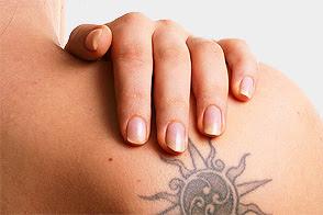 Remoción De Tatuajes Clinica Tesler Mar Del Plata