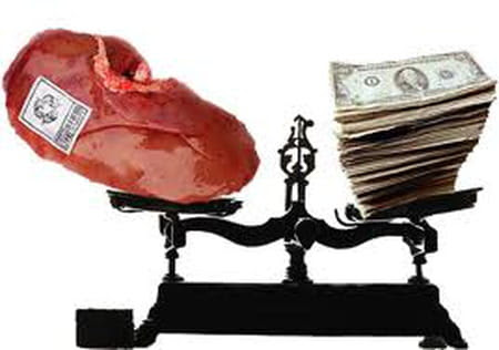 Le trafic d'organes, vous en pensez quoi?