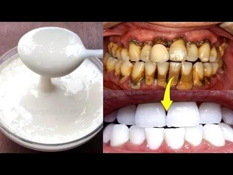 पीले दाँतों को सफ़ेद करे सिर्फ 2 मिनट में | Teeth Whitening Homemade
