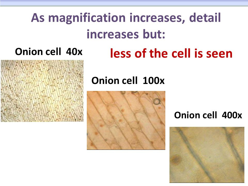 As+magnification+increases%2C+detail+increases+but%3A