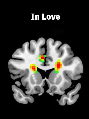 Participants who said they were in love showed more activity in certain areas of the brain