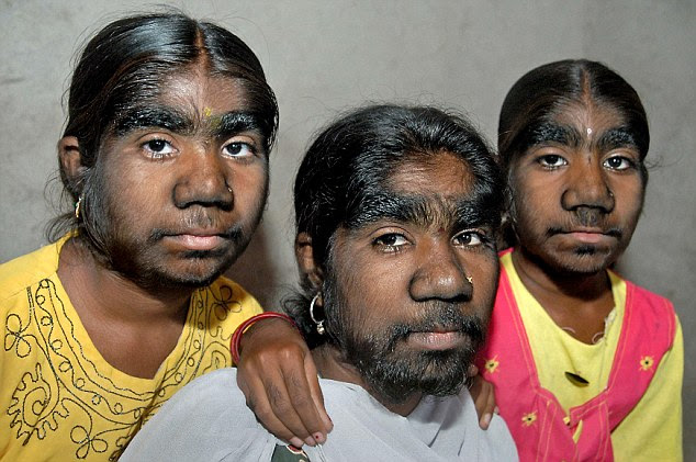 Brave (from left to right): The lives of Savita, Monish and Savitri Sangli have been blighted by one of the rarest conditions in the world - werewolf syndrome