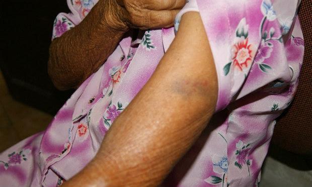 Idosa foi agredida durante assalto na zona rural, afirma polícia / Foto: Divulgação/Adielson Galvão.