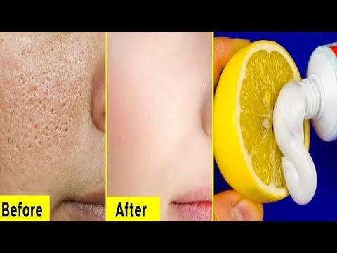 Skin Whitening Home Remedies | Skin Whitening Colgate Toothpaste