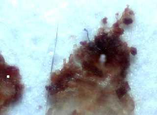 Morgellons-Haut- und System-Erkrankung: Symptome, Ursachen ...