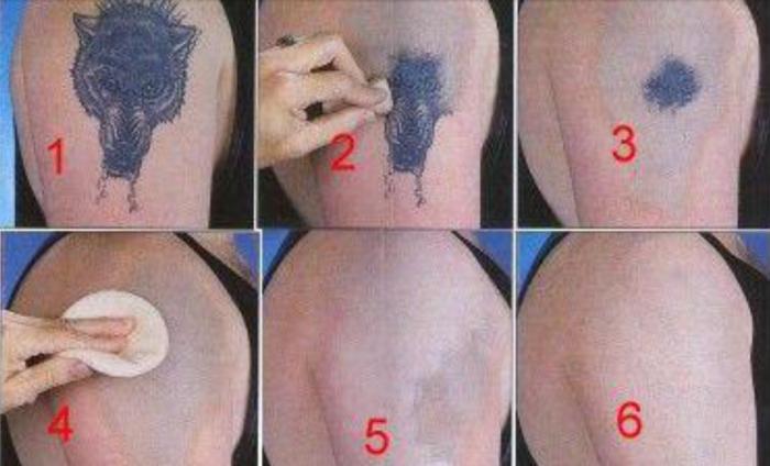 Option naturelle bon marché pour enlever le tatouage à la maison