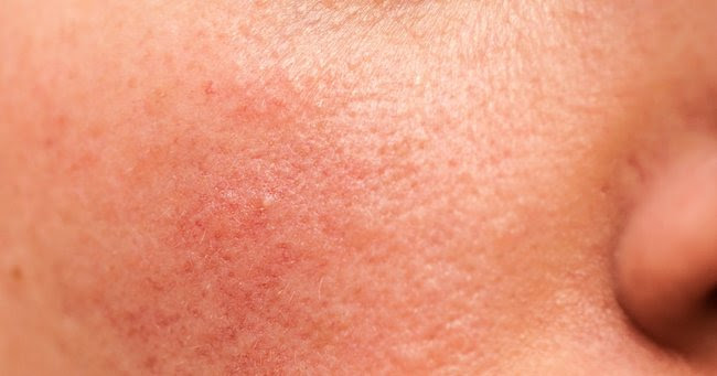 low vitamin d and itchy skin لم يسبق له مثيل الصور + E-FRONTA.INFO