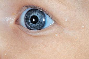 Dark circles, eye bags, puffy eyes, fine lines, milia ...