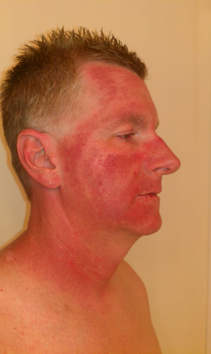 Blue Light Therapy For Skin Cancer