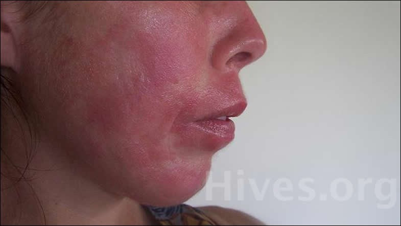 sudden face rash - pictures, photos