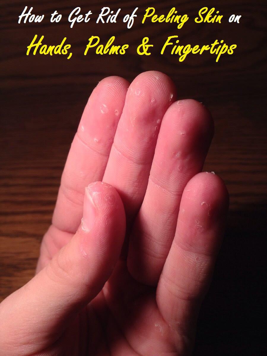 how to get rid of peeling skin on fingertips