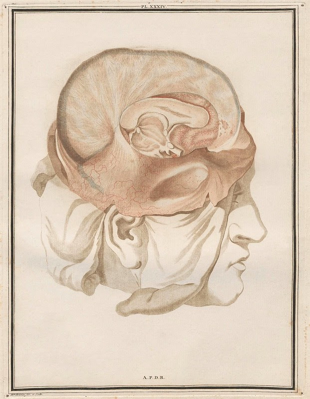 degloved cranial skin, removed skull and exposed intact brain scientific drawing 1780s French teaching thesis