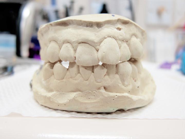 typicalben teeth before invisalign