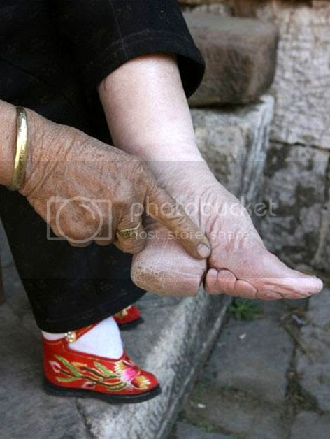 pieds bandes Chinois