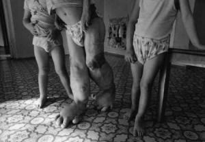 victimas_chernobil