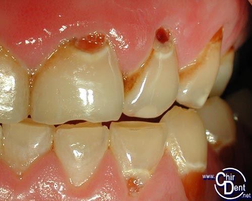 """Résultat de recherche d'images pour """"les caries dentaires"""""""
