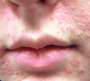 Main Causes of Itching Around Nose and Mouth   IYTmed.com