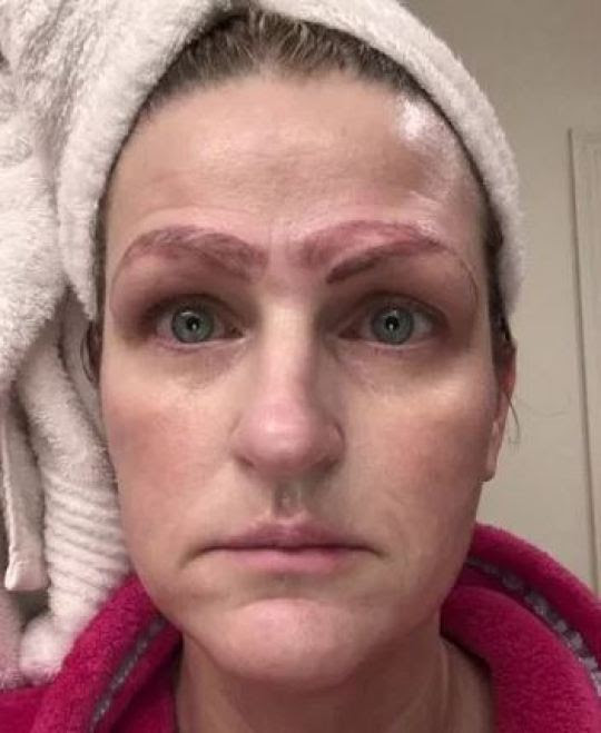 She was left with four eyebrows and is now undergoing expensive treatment to have them removed. Credit: WDAF