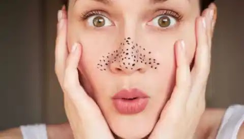 Make your stubborn 'Blackheads' disappear with these home remedies
