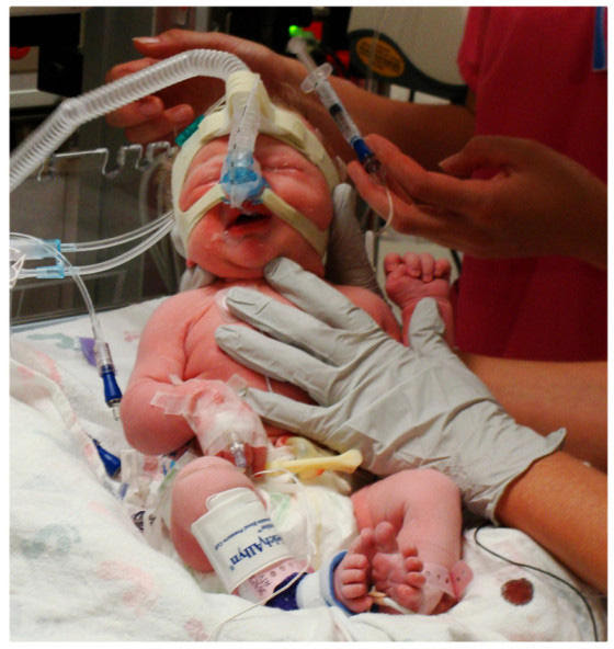 Neonatal Intensive Care Unit at Utah Valley Regional Medical Center