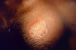 Signs and Symptoms | Hansen's Disease (Leprosy) | CDC