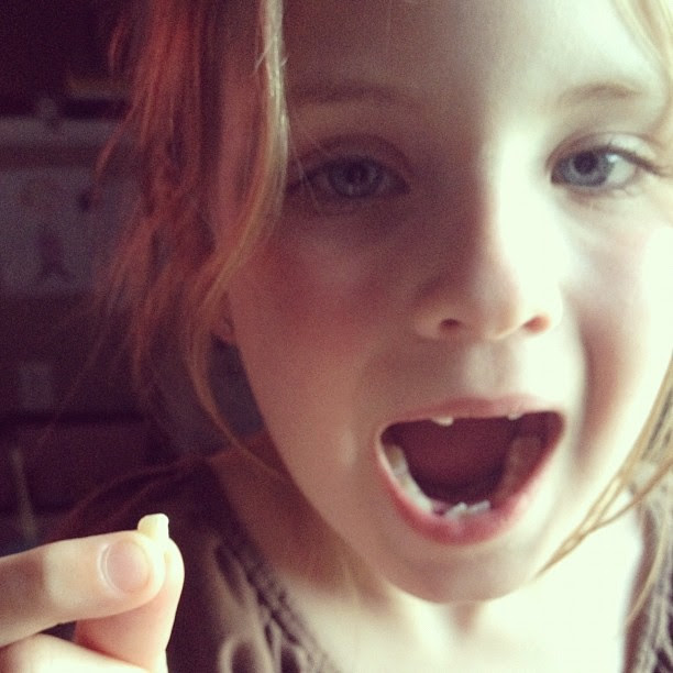 Another tooth!  Up to 6!