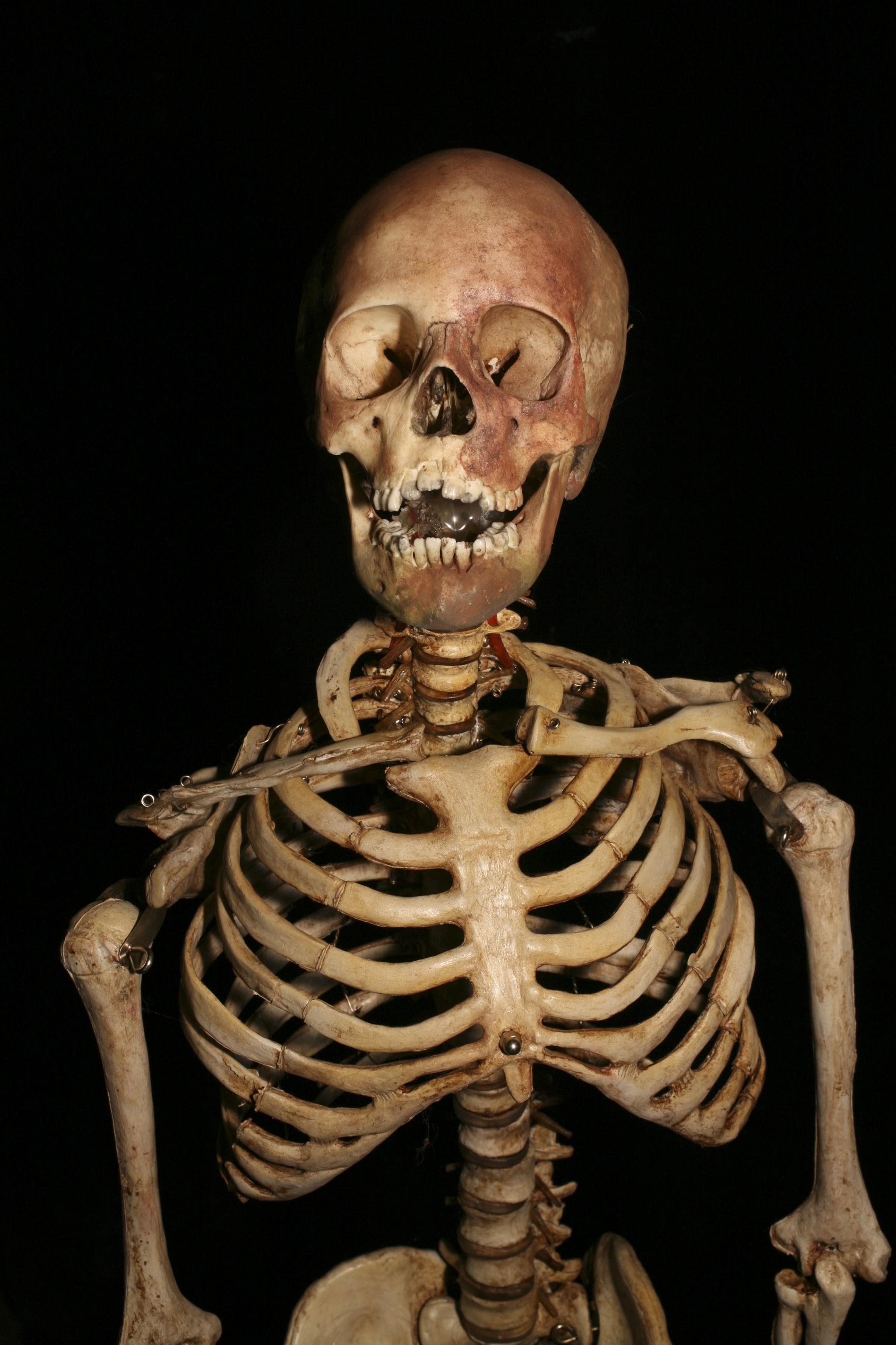 9_year_old_Child_Skeleton_49_001