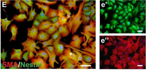 Encontradas células-tronco no cérebro humano adulto