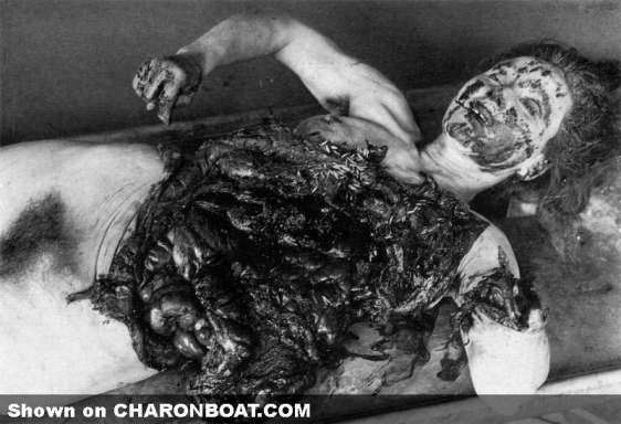 Russian woman prisoner at Japanese Invasion Army Unit 731. She died during the test of the ceramic bomb exposure's effect on a human body