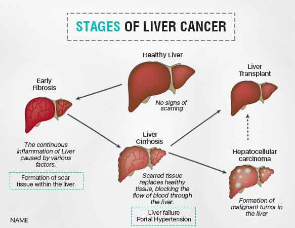 stages of liver cancer