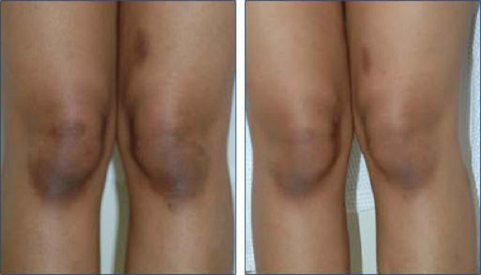 how-to-get-rid-of-black-knees-and-elbows